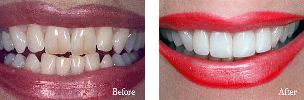 cosmetic-porcelain-veneers